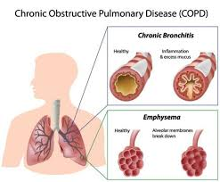 Stop COPD Before It Starts